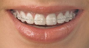Ceramic_Clear_Braces